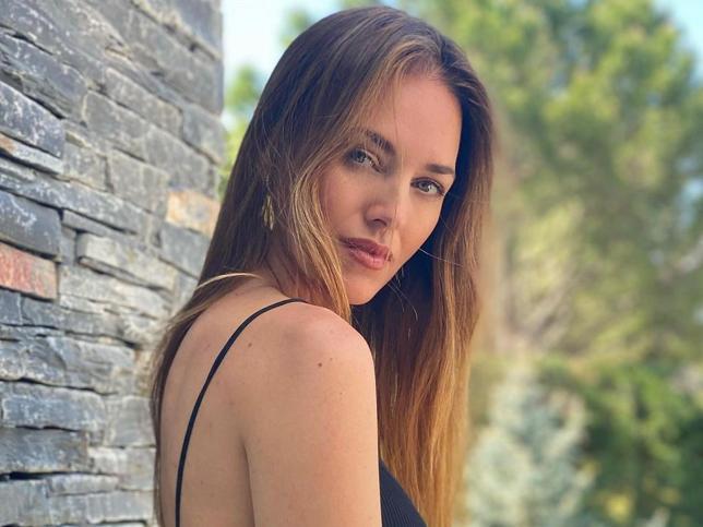 Helen Lindes también se hace el tratamiento favorito de las famosas e influencers para lucir una piel lisa y sin arrugas