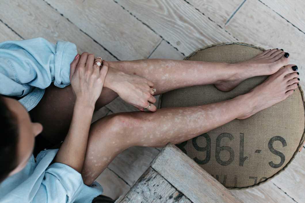 ¿Es la psoriasis una enfermedad autoinmune?