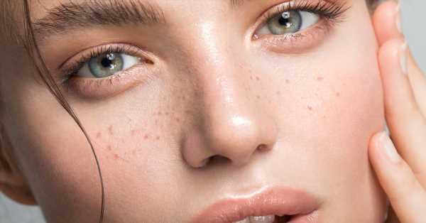 Nutren, reparan e incluso desmaquillan: todos los motivos para usar aceites en el rostro